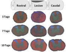 3D-MALDI-Imaging einer Rückenmarksverletzung bei der Ratte - Zentrum ...